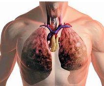 Туберкулез легких - народные способы лечения