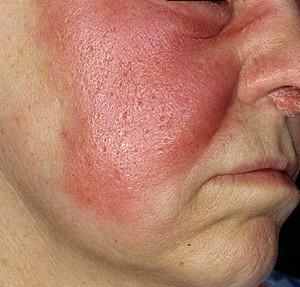 Рожа. Народное лечение инфекционного заболевания