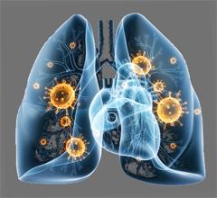 Пневмония у взрослых. Народное лечение в домашних условиях