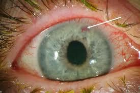 Лечение глаукомы с помощью целебных трав