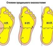 Плоскостопие - причины, профилактические меры, методы лечения